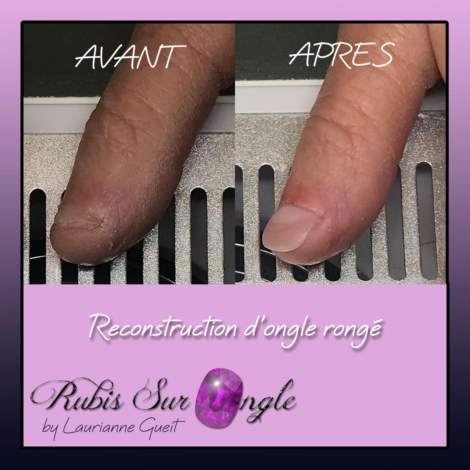 Rubis Sur Ongle Manucure avant après